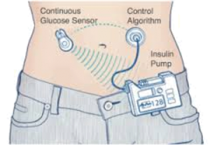 Glucose monitor & insulin pump
