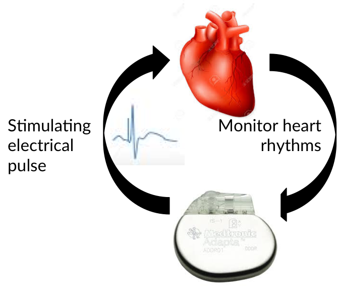 Heart Pacemaker feedback to improve heart regulation