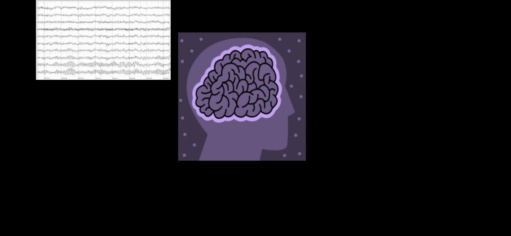 Simple illustration of Neurofeedback