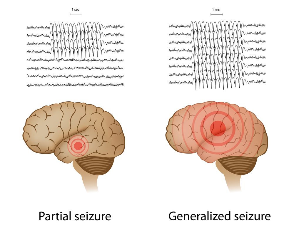brainwave patterns during elileptic seizures