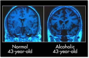 Comparison of non-alcoholic and acoholic brains