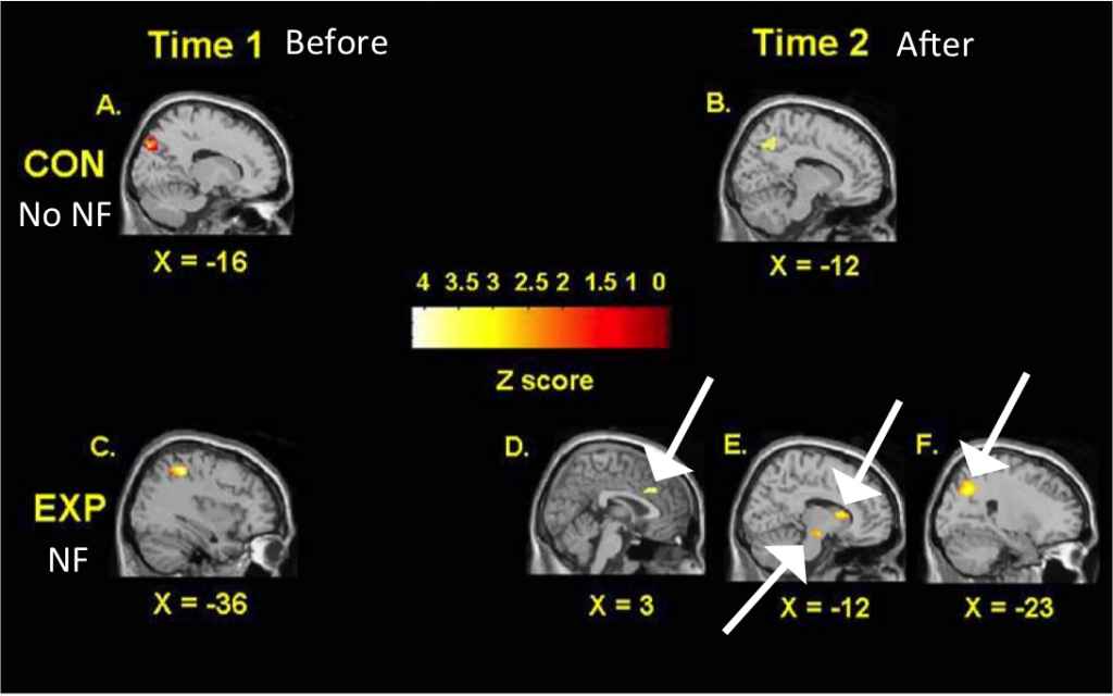 Parts of the brain controlling selective attention and response inhibition showed activation after NF