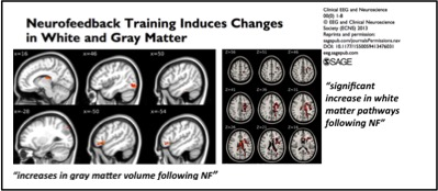 Neurofeedback Training Induces Changes in White and Gray Matter