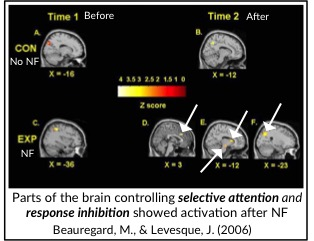 fMRI scan comparative study